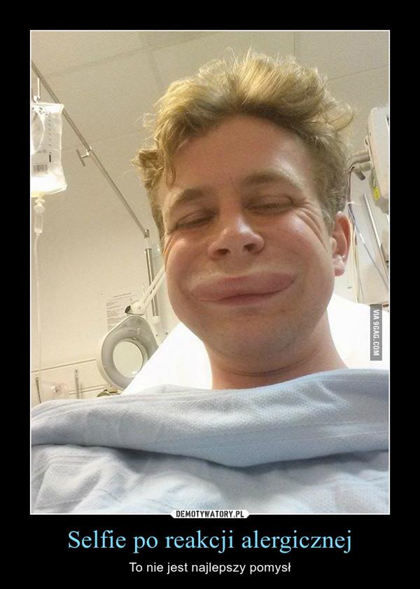 Selfie po reakcji alergicznej – To nie jest najlepszy pomysł