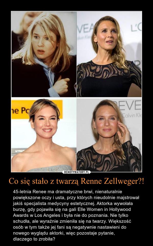 Co się stało z twarzą Renne Zellweger?! – 45-letnia Renee ma dramatyczne brwi, nienaturalnie powiększone oczy i usta, przy których nieudolnie majstrował jakiś specjalista medycyny estetycznej. Aktorka wywołała burzę, gdy pojawiła się na gali Elle Women in Hollywood Awards w Los Angeles i była nie do poznania. Nie tylko schudła, ale wyraźnie zmieniła się na twarzy. Większość osób w tym także jej fani są negatywnie nastawieni do nowego wyglądu aktorki, więc pozostaje pytanie,dlaczego to zrobiła?