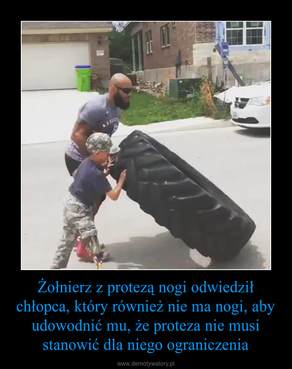 Żołnierz z protezą nogi odwiedził chłopca, który również nie ma nogi, aby udowodnić mu, że proteza nie musi stanowić dla niego ograniczenia –