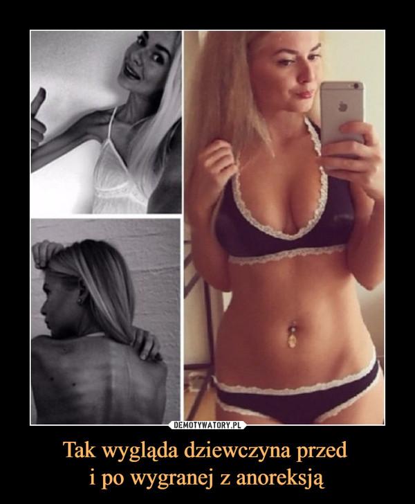 Tak wygląda dziewczyna przed i po wygranej z anoreksją –