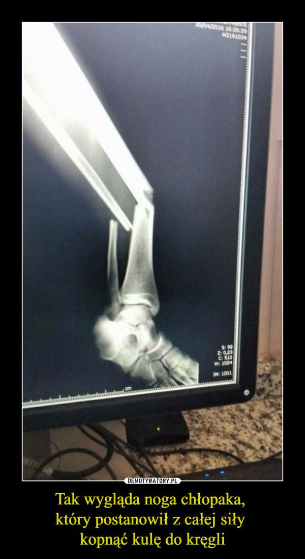 Tak wygląda noga chłopaka, który postanowił z całej siły kopnąć kulę do kręgli –