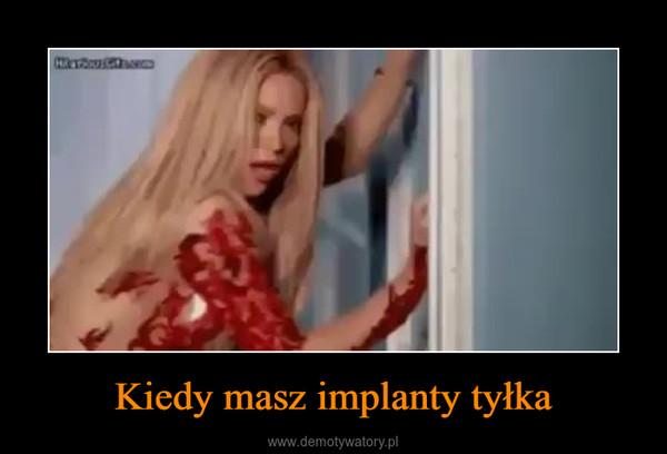 Kiedy masz implanty tyłka –