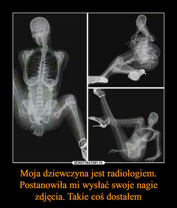 Moja dziewczyna jest radiologiem. Postanowiła mi wysłać swoje nagie zdjęcia. Takie coś dostałem –