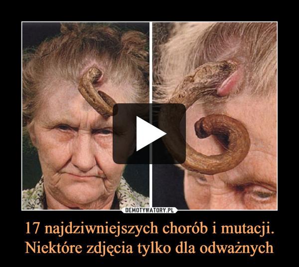 17 najdziwniejszych chorób i mutacji. Niektóre zdjęcia tylko dla odważnych –