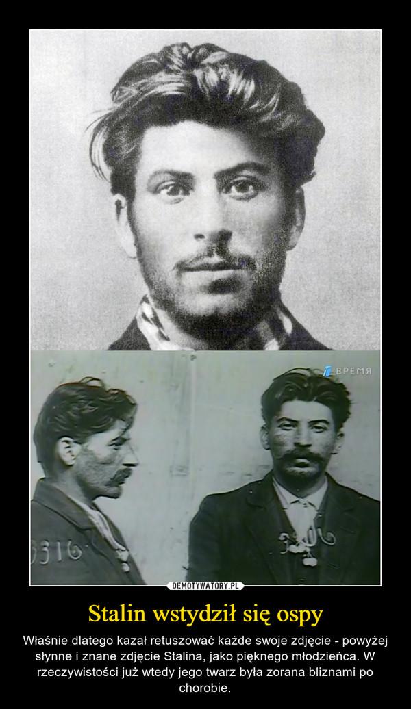 Stalin wstydził się ospy – Właśnie dlatego kazał retuszować każde swoje zdjęcie - powyżej słynne i znane zdjęcie Stalina, jako pięknego młodzieńca. W rzeczywistości już wtedy jego twarz była zorana bliznami po chorobie.