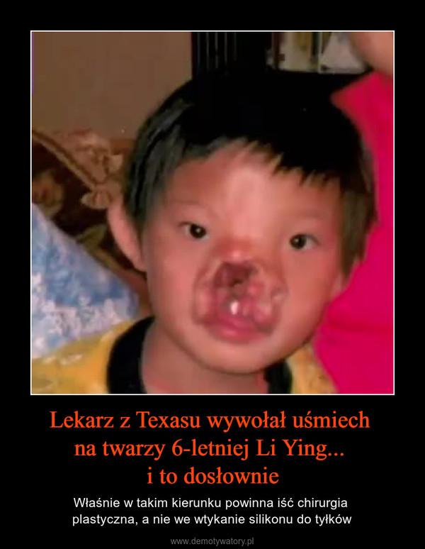 Lekarz z Texasu wywołał uśmiech na twarzy 6-letniej Li Ying... i to dosłownie – Właśnie w takim kierunku powinna iść chirurgia plastyczna, a nie we wtykanie silikonu do tyłków