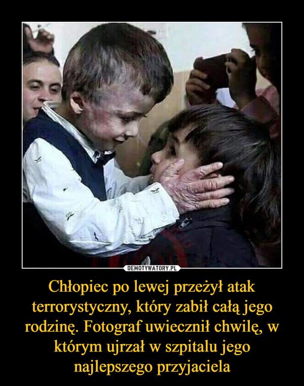 Chłopiec po lewej przeżył atak terrorystyczny, który zabił całą jego rodzinę. Fotograf uwiecznił chwilę, w którym ujrzał w szpitalu jego najlepszego przyjaciela –