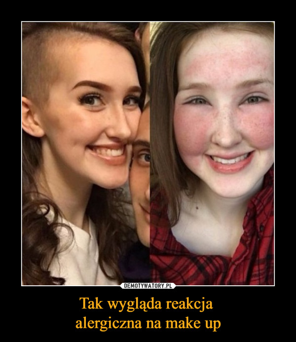 Tak wygląda reakcja alergiczna na make up –
