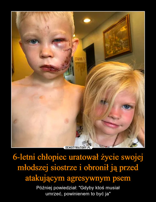 6-letni chłopiec uratował życie swojej młodszej siostrze i obronił ją przed atakującym agresywnym psem
