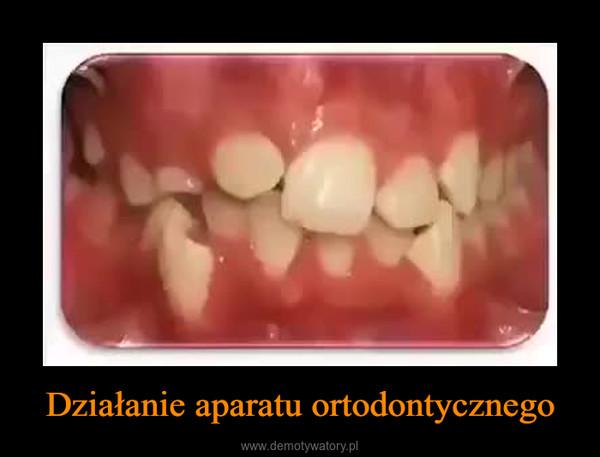 Działanie aparatu ortodontycznego –