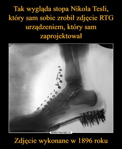 Tak wygląda stopa Nikola Tesli, który sam sobie zrobił zdjęcie RTG urządzeniem, który sam zaprojektował Zdjęcie wykonane w 1896 roku